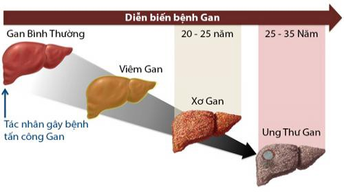 Chế độ ăn tốt nhất cho người bệnh gan.